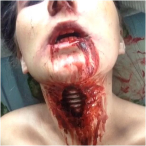 3. Laryngitis, HA