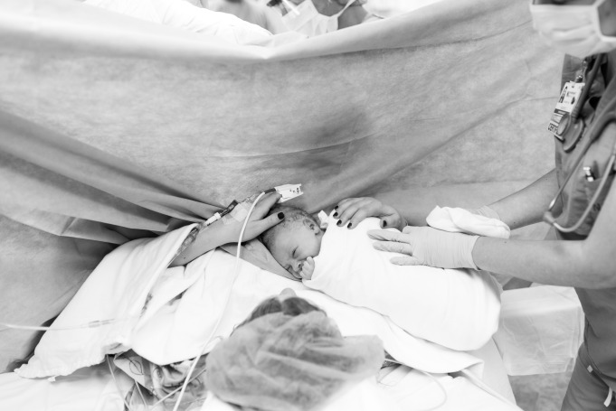 Childbirth photography: A mother holds her child after a C-section operation