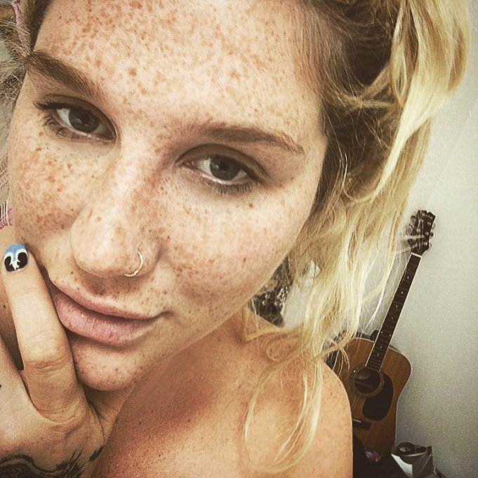 Celebrities Who You Didn't Know Had Freckles | Kesha