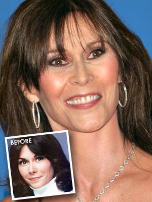 Kate Jackson had bad plastic surgery