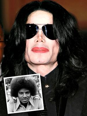 Michael Jackson had bad plastic surgery