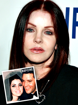 Priscilla Presley - bad plastic surgery