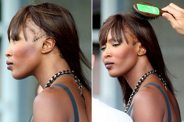 Naomi Campbell's hair loss