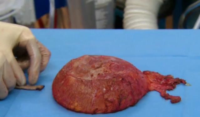 Yolanda's implant