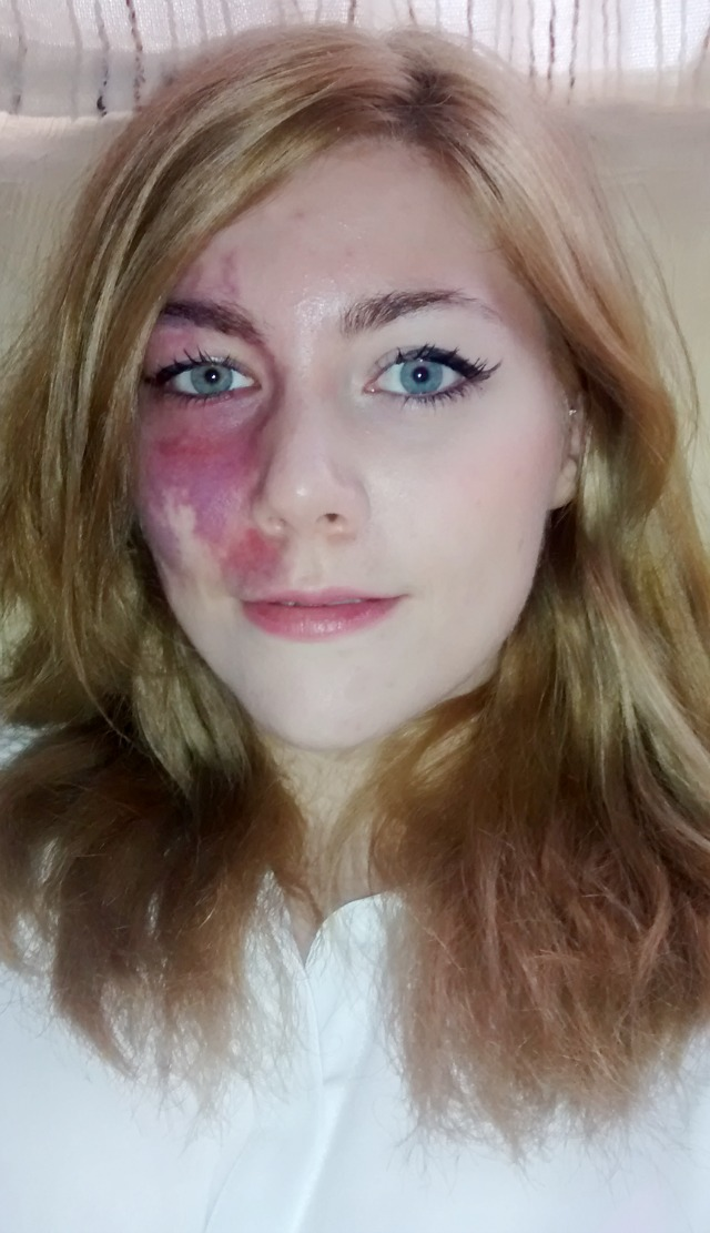 Woman shows off facial birthmark in a series of selfies