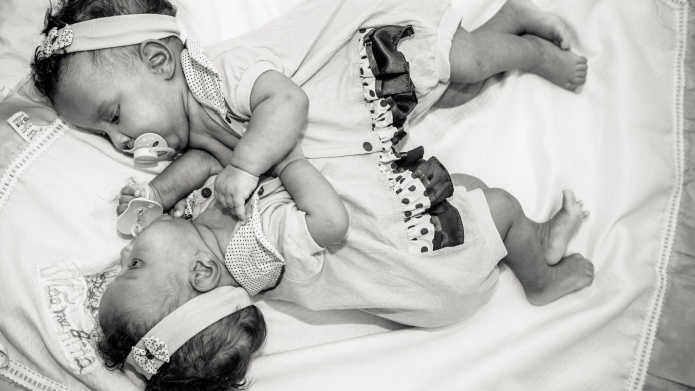 Photographer honors conjoined twin girls in