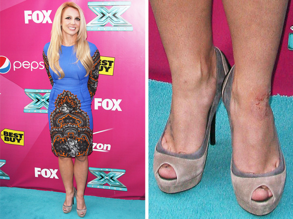 Britney Spears psoriasis legs