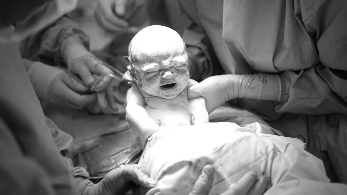 A baby being born by Caesarean
