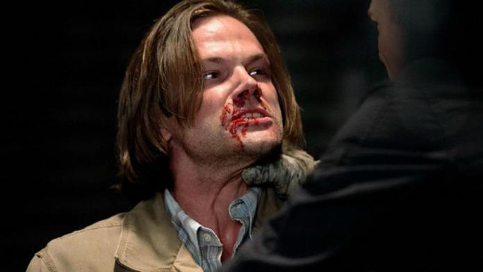 Supernatural sneak peek: Why so bloody,