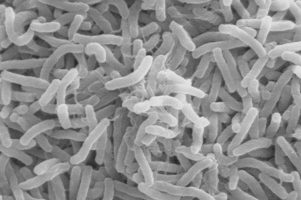 Cholera Slide