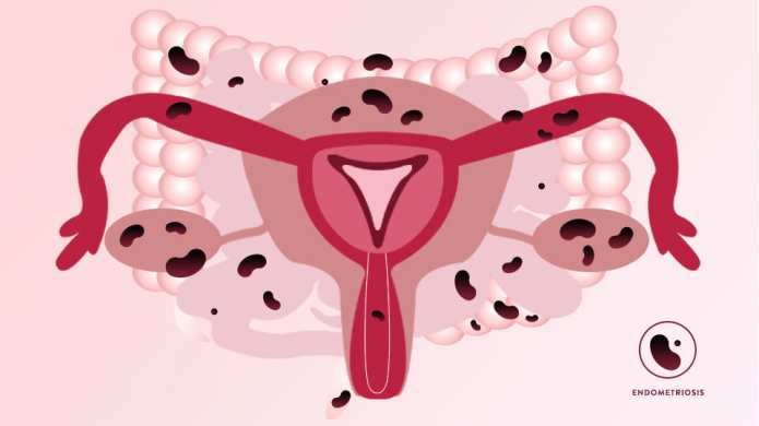 This Is What Endometriosis Does to