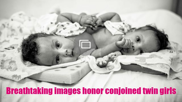 conjoined twins slideshow