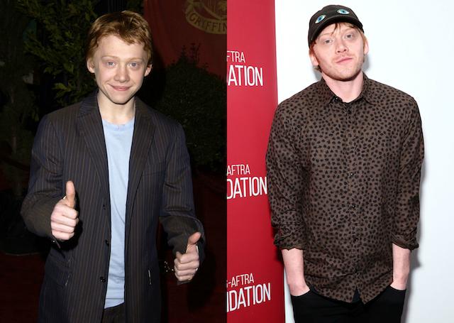 'Harry Potter' Cast: Then & Now: Rupert Grint