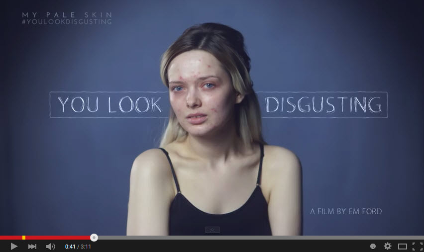 Em Watson, You look Disgusting