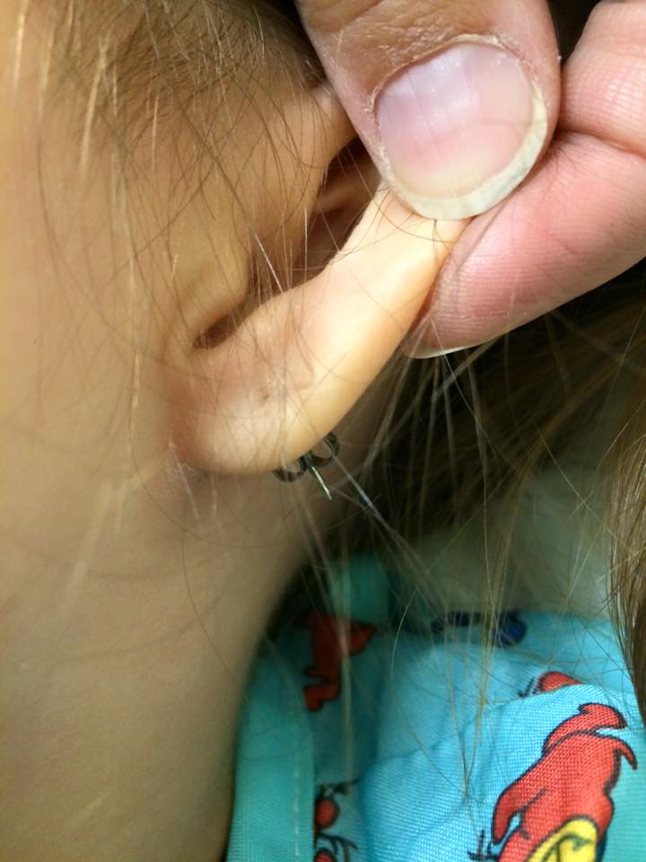 Toddler Forced To Undergo Surgery To Remove Stuck Earring Sheknows