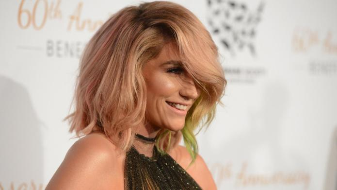 6 Things to love about Kesha's