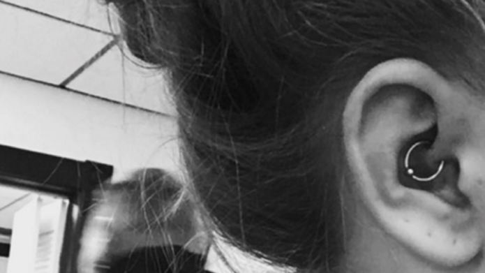 Do Daith piercings really cure migraines?