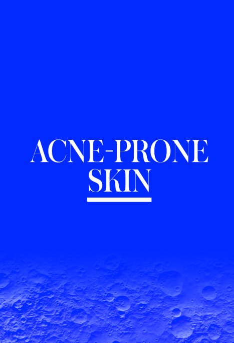 What Is My Skin Type: Acne Prone Skin Rules | Skincare routines
