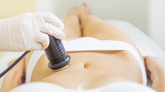 Why I'd do non-invasive fat removal