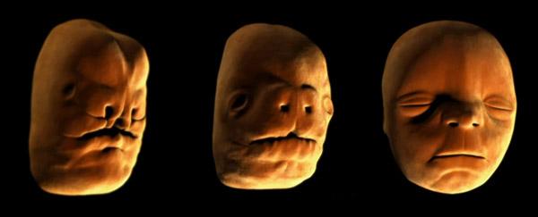 Fetal facial development