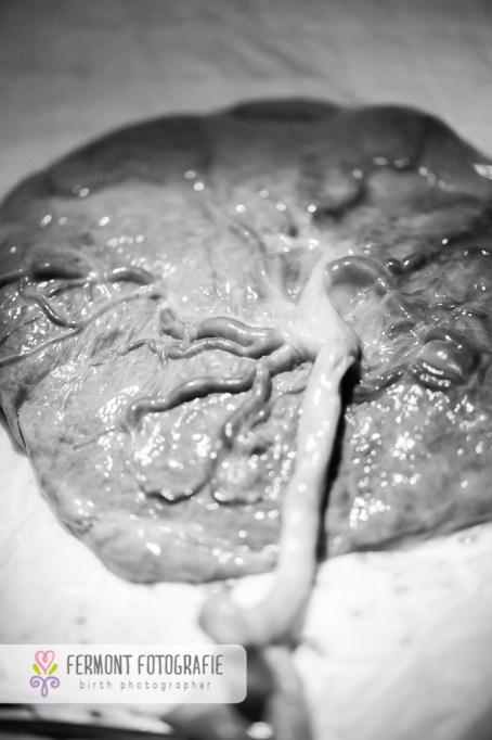 placenta-close-up