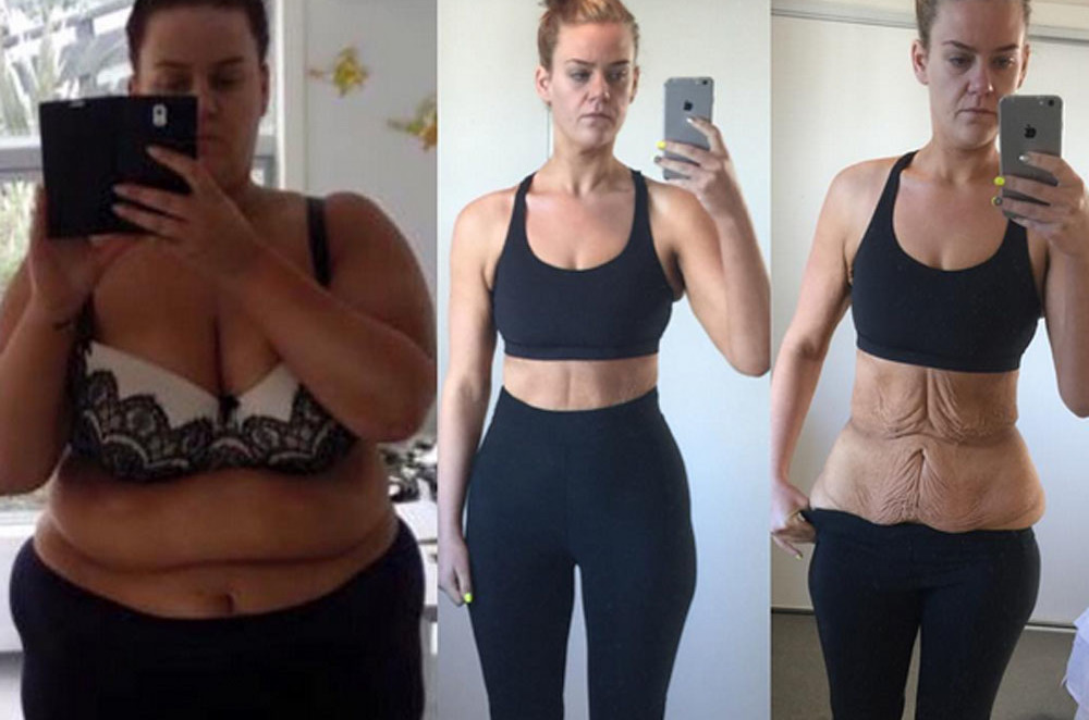 Woman Shamed For 194 Pound Weight Loss Shows Off Body After Skin