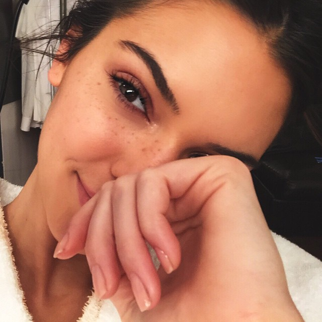 Celebrities Who You Didn't Know Had Freckles | Kendall Jenner