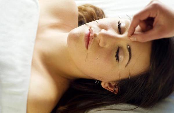 Cosmetic acupuncture: Younger skin
