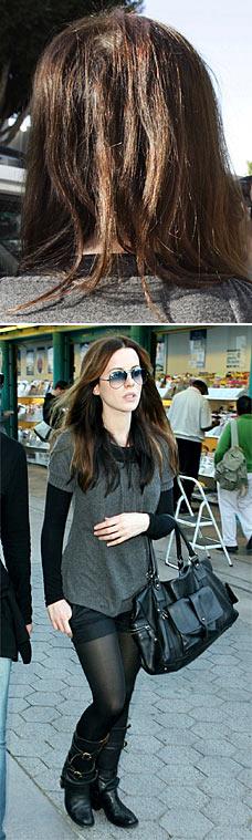 Kate Beckinsale's hair loss
