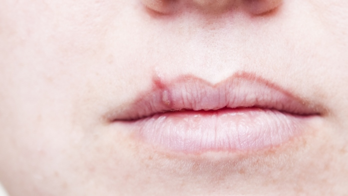 Almost everyone has oral herpes, including