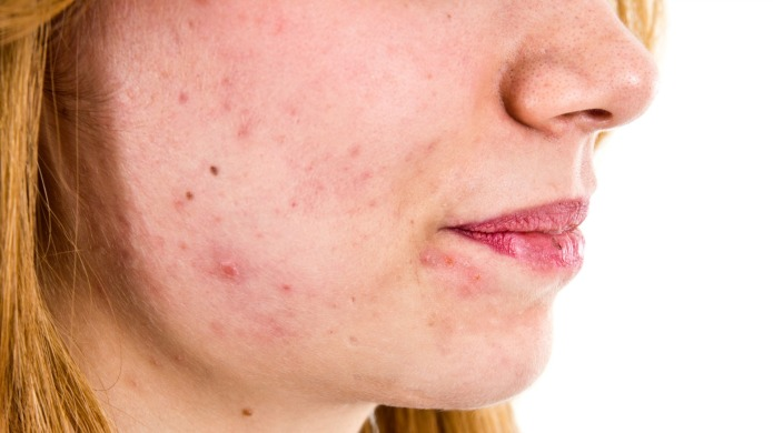 Here's what your dermatologist isn't telling