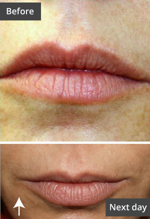 Laser facial -- before and after