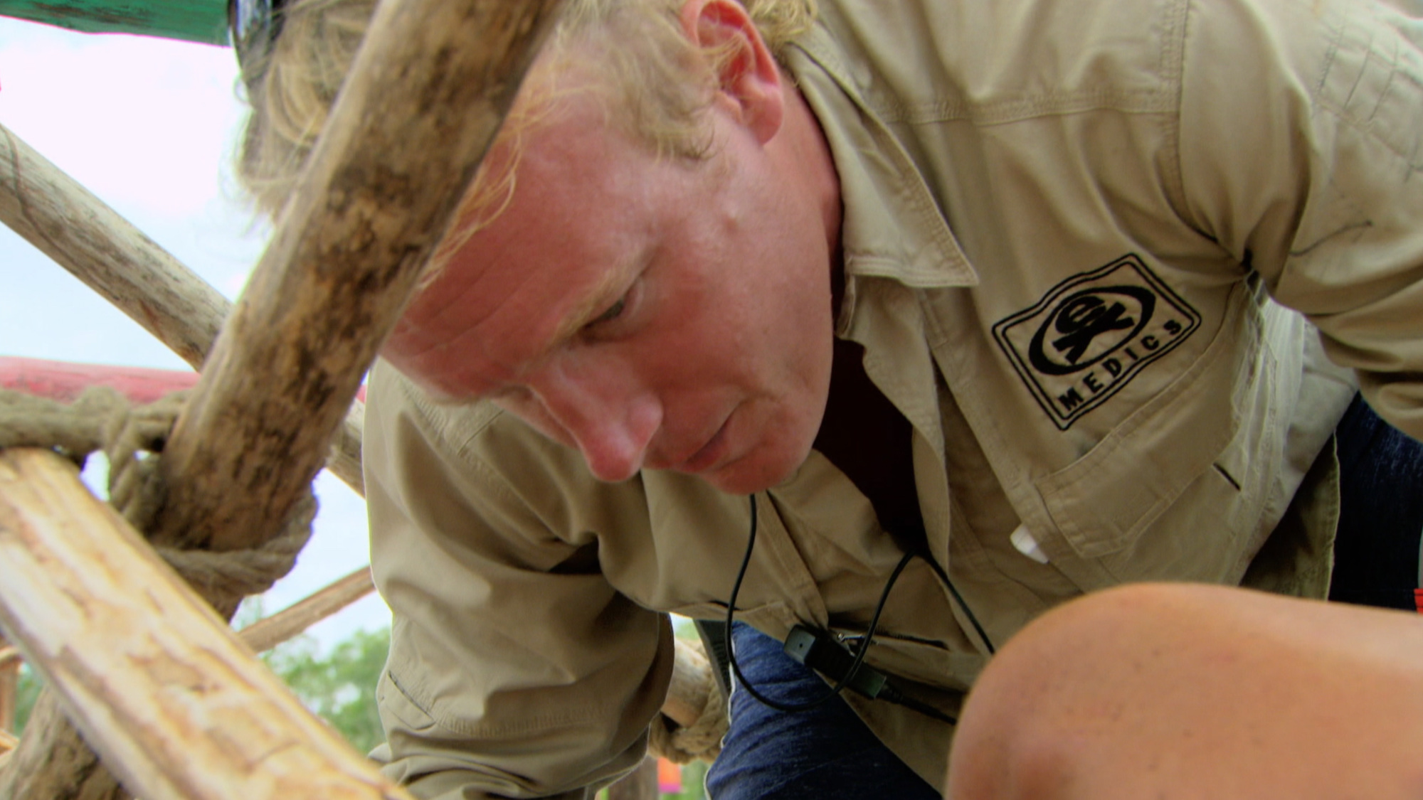 Medic evaluates Joe on Survivor: Second Chance