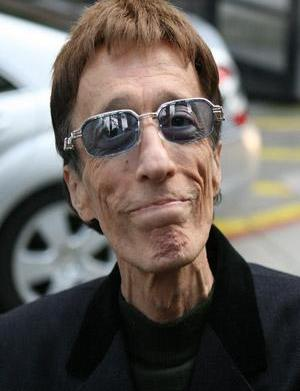 Singer Robin Gibb diagnosed with liver