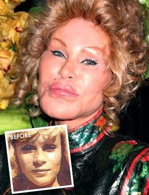 Bad plastic surgery on celebrities: Priscilla