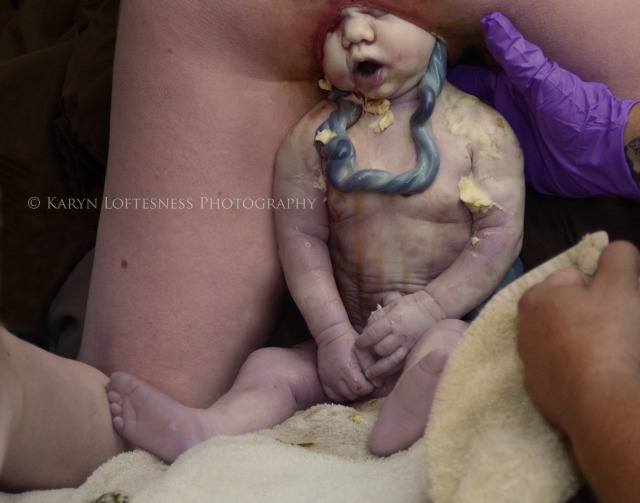 Vaginal breech birth