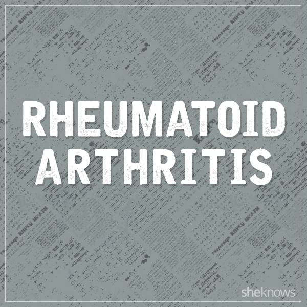 Rheumatoid arthritis graphic
