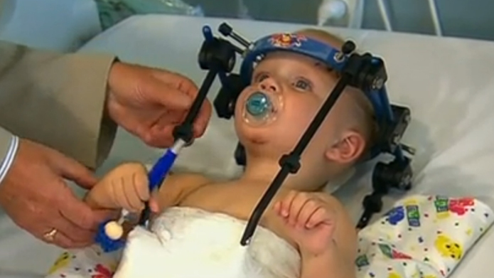 Doctors save toddler who suffered scary