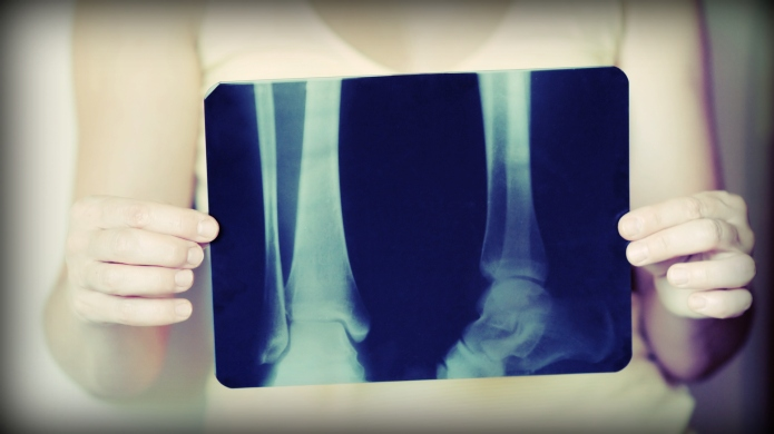 My mom's recent bone fracture opened