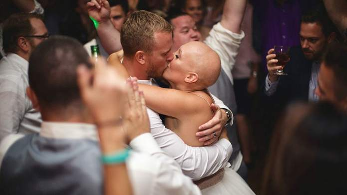 This Bride With Alopecia Went Wig-Free,