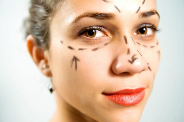 Plastic surgery - facelift