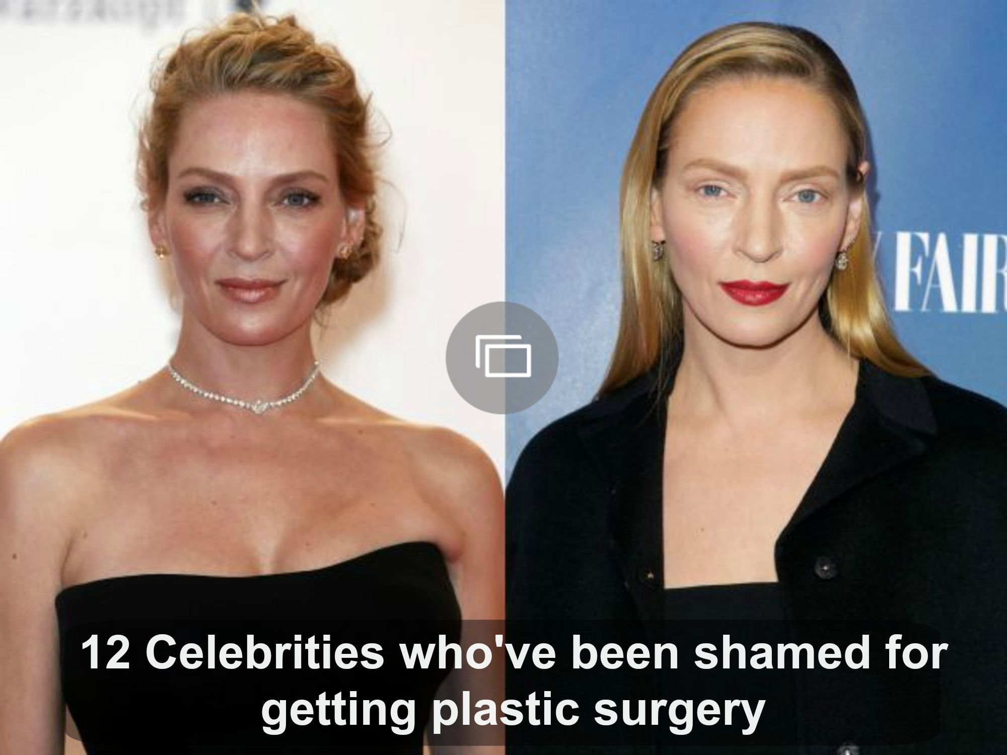 Celebrities who've been shamed for plastic surgery