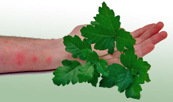 Poison oak/ivy rash