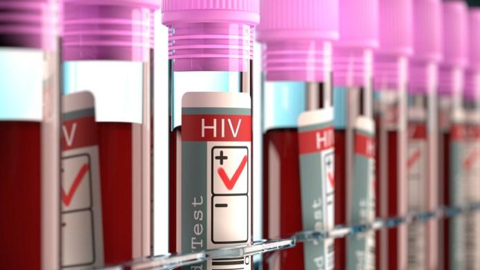 Blood samples for HIV tests, illustration