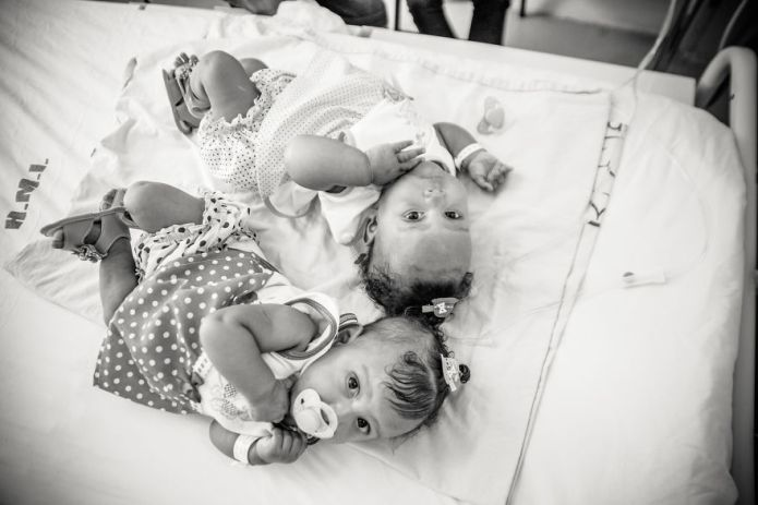 Amazing photos celebrate conjoined twins' successful