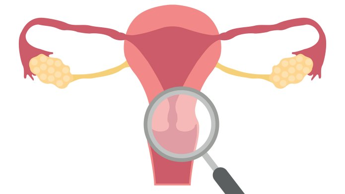 What Is 'Inside-Out' Endometriosis?
