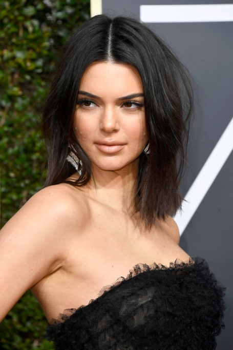 Celebrities Who Embrace Their Acne | Kendall Jenner