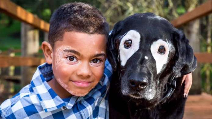 Boy With Vitiligo Meets Dog With