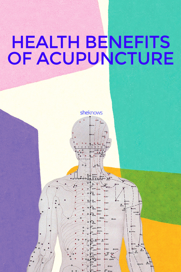 What Really Happens at Acupuncture — and How It Helps Your