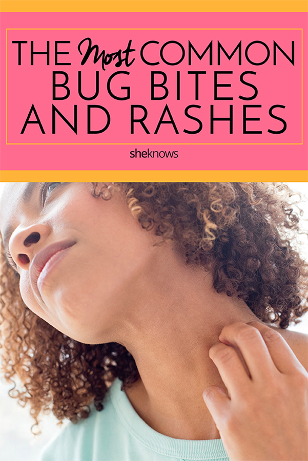 Most common bug bites and rashes